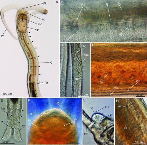 Protodrilus smithsoni