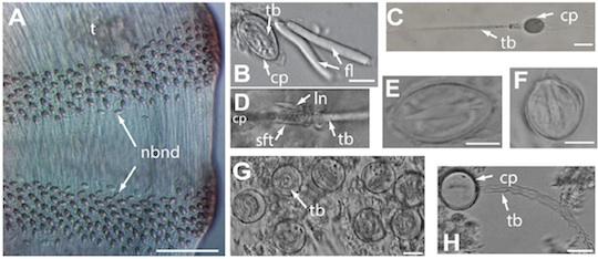 Fig. 3. El cnidoma (conjunto de nematocistos) del neo-tipo de Alatina alata y especímenes de USNM, reproducidos de Lewis et al. 20133.