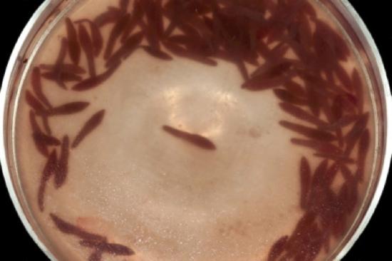 Trematodos en una placa de Petri con agua después de ser extraídos del seno pterigoideo de una orca pigmea (Feresa attenuata).
