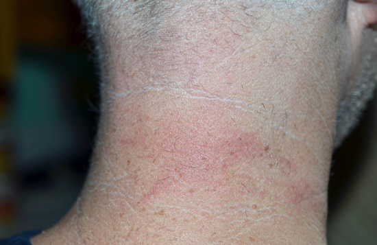 The back of my neck the day after I was stung by the box jellyfish Carybdea.