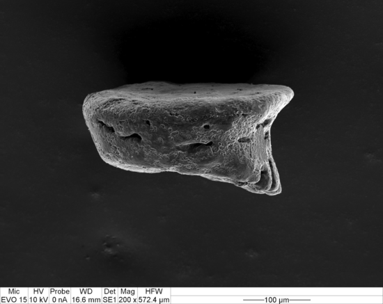 Fig. 10. Lateral view of a detached gastropore lid from figure 9 (SEM, magnification x 200).