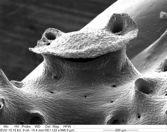 Fig. 11. Curious arrangement of dactylopore spines so as to resemble a frog's face (SEM, magnification x 122).