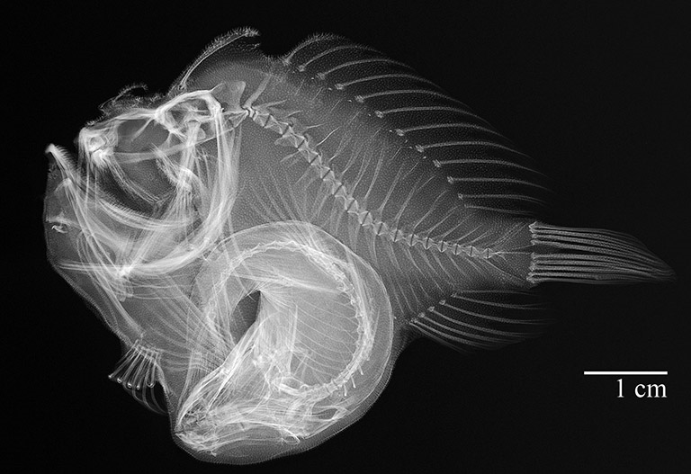An x-ray reveals, even further, the immensity of this fish's last meal relative to its own body size.  Radiograph by Sandra Raredon.