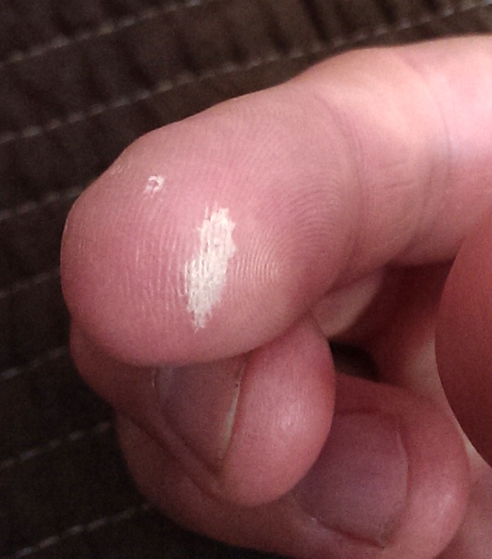 My finger more than two weeks after getting stung by Nemalecium.