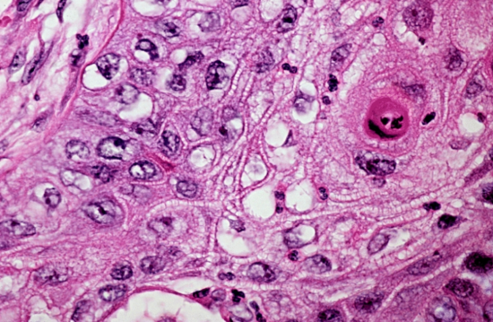 Well_differentiated_squamous_cell_carcinoma
