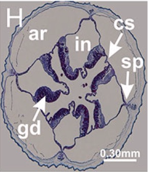 Histological section through the stalked medusa (Staurozoan). The claustrum is marked CS.