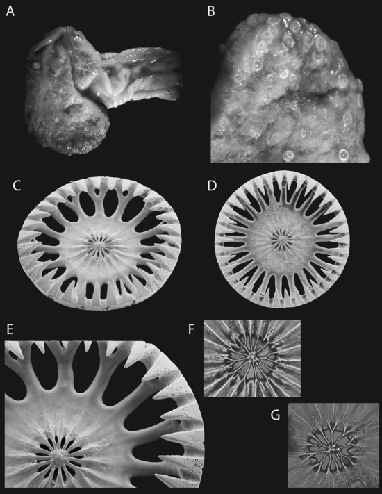 Myriotrochus ahearnae Pawson, Nizinski and Ames n. sp. (A) Holotype; (B) posterior end of holotype; (C) wheel, diameter 400 μm, external view; (D) wheel, diameter 426 μm, exterior view; (E) detail of C; (F, G); irregular central perforations of wheels.