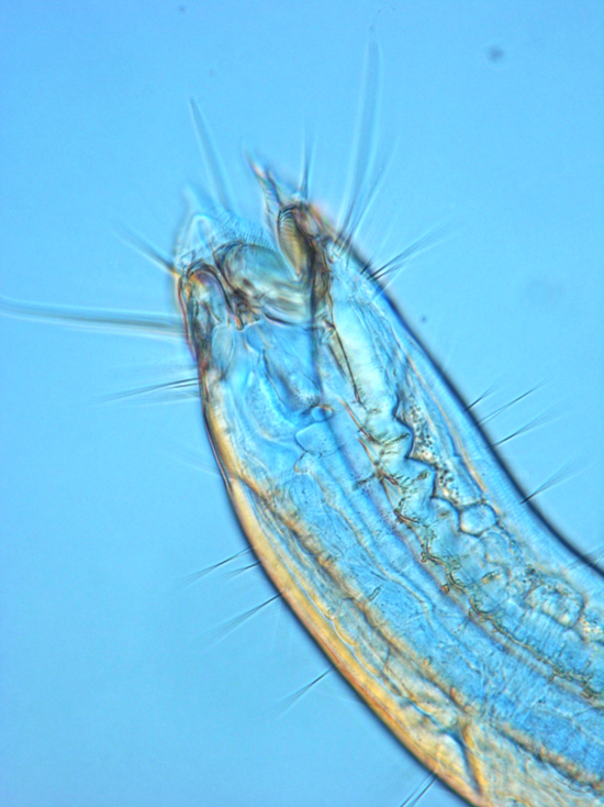 EpacanthionSmythe.jpg. Caption: The head region of the marine nematode Epacanthion sp., magnified 1000X.