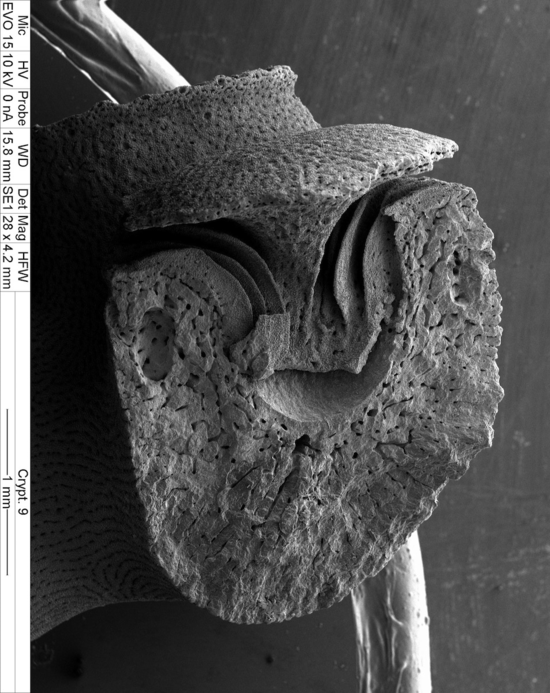 Fig. 4. Longitudinal section of a cyclosystem and its gastropore tube (SEM, magnification x 28).